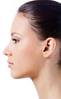 Безоперационная контурная пластика носа